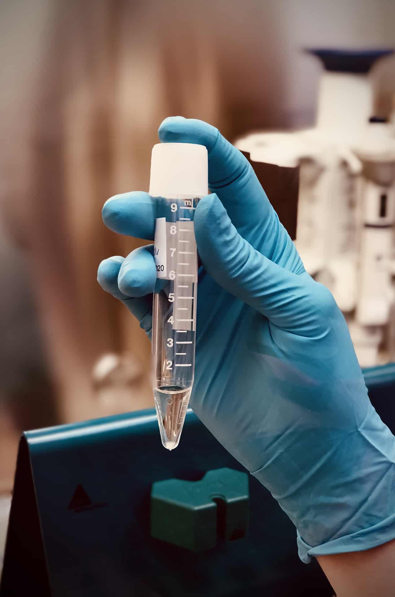 IVF- metoda MACS